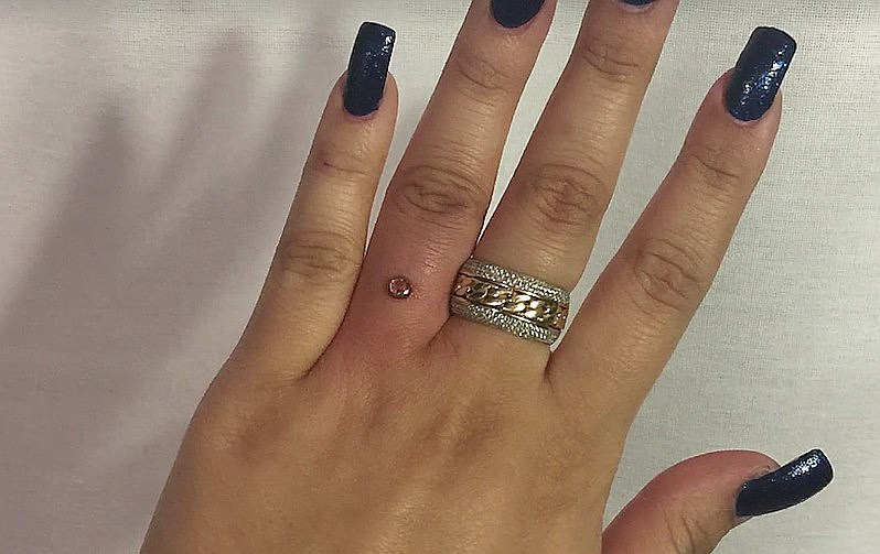 Engagement Trend Finger Piercing Takes Place Of A Ring Video